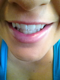 Natural Teeth Whitening Solution